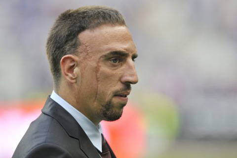 Франк Рибери (Franck Ribery)